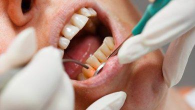 Photo of کاربرد لیزرهای بافت سخت در دندانپزشکی ترمیمی و زیبایی