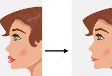 تصویر تزریق آنزیم هیالورونیداز برای رفع سریع عوارض فیلر یا ژل تزریقی صورت