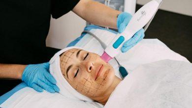Photo of اثرات آر اف ترماژ برای جوانسازی پوست-آنچه باید بدانید!؟