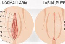 تزریق چربی به واژن و تزریق ژل به واژن برای تقویت لابیا خانمها