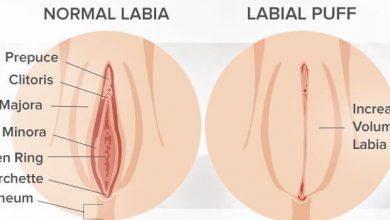 Photo of تزریق چربی به واژن و تزریق ژل به واژن برای تقویت لابیای خانمها