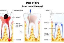 عصب کشی دندان با لیزر یا درمان لیزری روت کانال: مراقبت پیشرفته دندانی
