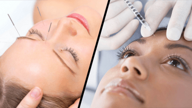 تصویر آیا طب سوزنی صورت میتواند جایگزین بوتاکس برای جوانی پوست باشد؟