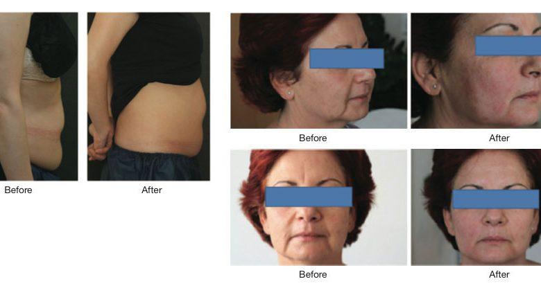 تصویر امبدینگ نخ طب سوزنی برای جوانی صورت، کاهش سایز و رفع افتادگی سینه