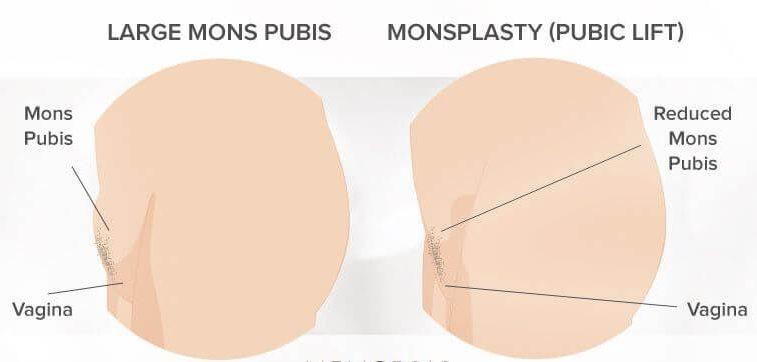 مزایا و معایب جراحی مونسپلاستی آلت تناسلی زنان چیست؟