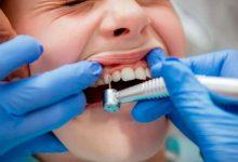 پرکردن حفره دندانها بدون تماس مته با لیزر Er-Yag