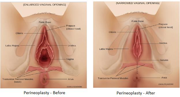 در طی جراحی پرینئوپلاستی چه اتفاقی میافتد؟