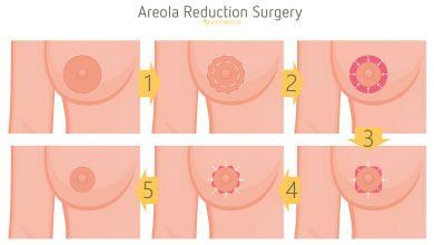 جراحی آرئول یا کاهش هاله سیاهی دور نوک سینه زنان و مردان