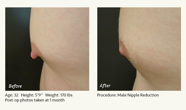 جراحی نوک سینه زنان یا نیپل برای زیبایی آن چیست؟