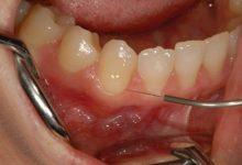 حساسیت زدایی دندان برای رفع حساسیت شدید با روشهای مختلف
