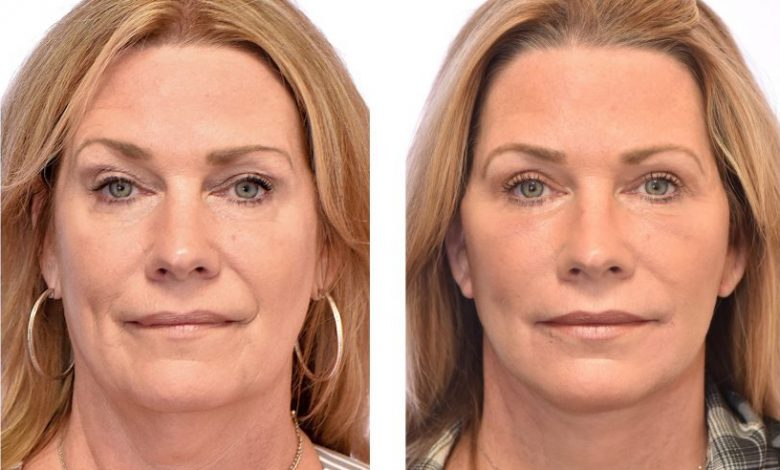 جراحی لیفت صورت یا ریتیدکتومی: آنچه که باید بدانید