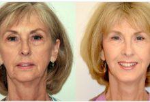 جراحی لیفت صورت اسماس SMAS چیست؟مزایا و معایب