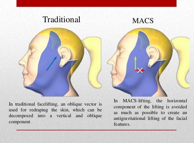 جراحی لیفت صورت ماکس MACS چیست؟مزایا و معایب