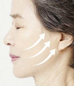 در طول جراحی لیفت صورت بخش تحتانی چه اتفاقی میافتد؟